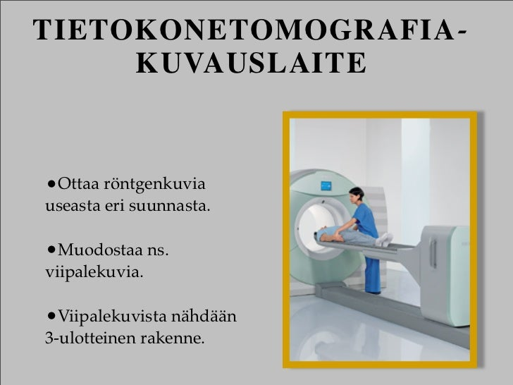 TIETOKONETOMOGRAFIA-     KUVAUSLAITE•Ottaa röntgenkuviauseasta eri suunnasta.•Muodostaa ns.viipalekuvia.•Viipalekuvista nä...