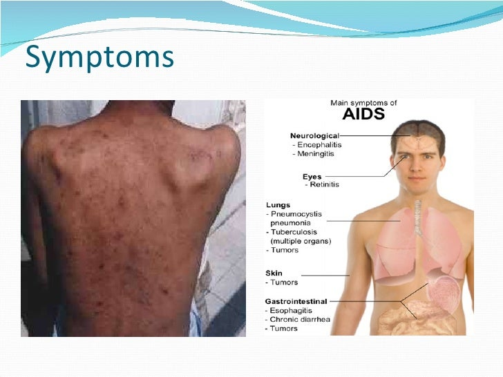aids-22-728?cb=1416969770, Human body