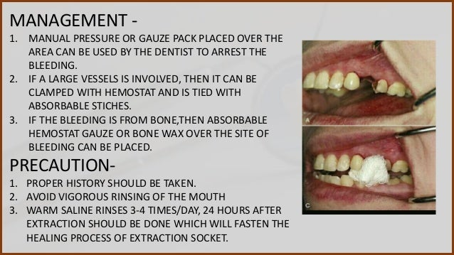 Complication of Tooth extraction and management