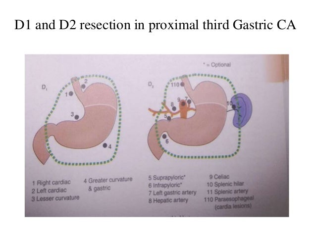 D1 and D2 resection in proximal third Gastric CA