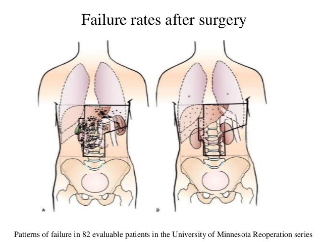 Patterns of failure in 82 evaluable patients in the University of Minnesota Reoperation series Failure rates after surgery