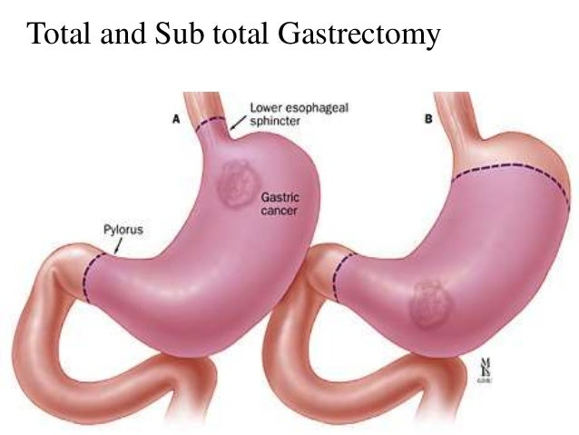 Total and Sub total Gastrectomy