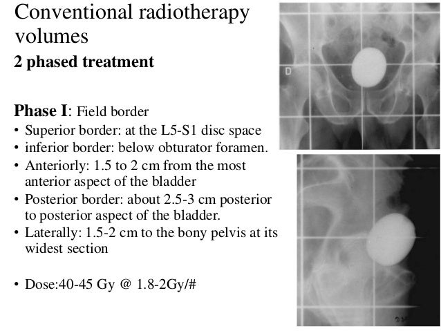 Conventional radiotherapy volumes 2 phased treatment Phase I: Field border • Superior border: at the L5-S1 disc space • in...