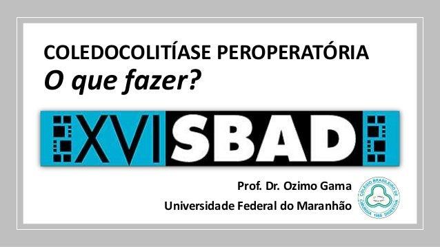 COLEDOCOLITÍASE PEROPERATÓRIA O que fazer? Prof. Dr. Ozimo Gama Universidade Federal do Maranhão