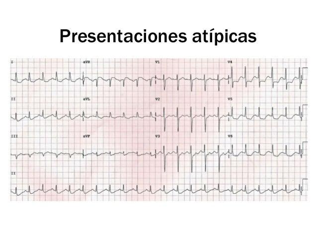 *ICP = Intervención coronaria                                                                percutánea                  S...