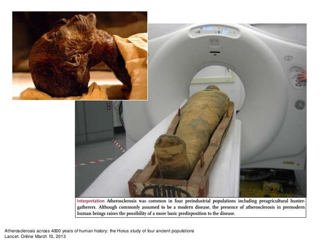 Atherosclerosis across 4000 years of human history: the Horus study of four ancient populationsLancet. Online March 10, 2013