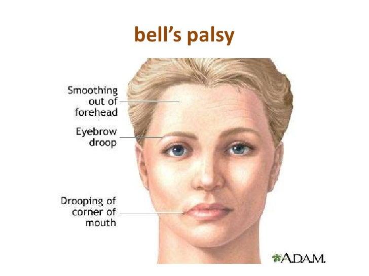 Face Anatomy Ukrandiffusion