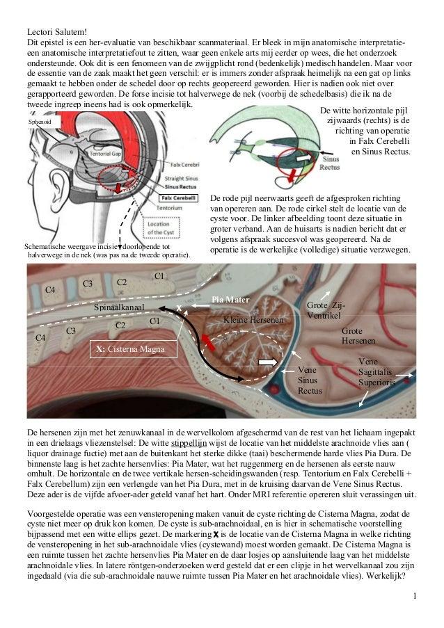 1 Lectori Salutem! Dit epistel is een her-evaluatie van beschikbaar scanmateriaal. Er bleek in mijn anatomische interpreta...