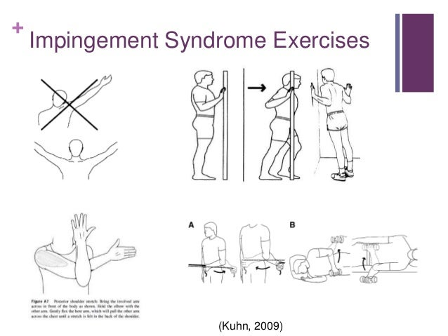 Impingement Syndrome Exercises Pictures to Pin on ...