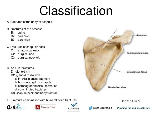 Scapular Fractures
