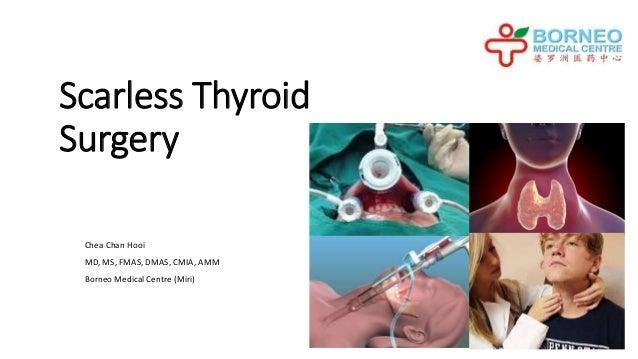 Scarless Thyroid Surgery Chea Chan Hooi MD, MS, FMAS, DMAS, CMIA, AMM Borneo Medical Centre (Miri)