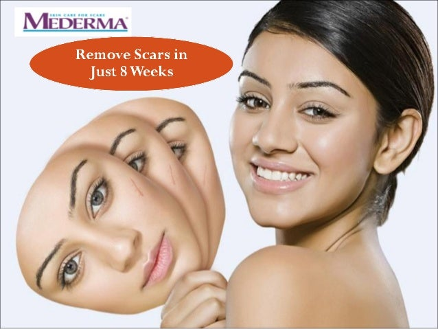 Scar Removal In Just 8 Weeks By Mederma Scar Removal Cream