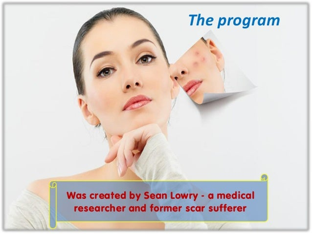 The program Was created by Sean Lowry - a medical researcher and former scar sufferer