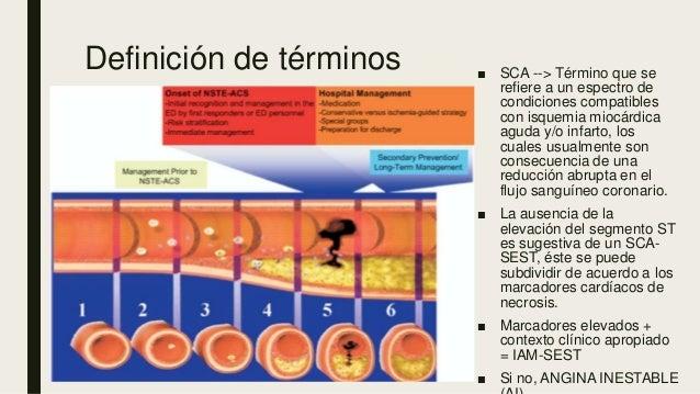 Definición de términos ■ SCA --> Término que se refiere a un espectro de condiciones compatibles con isquemia miocárdica a...
