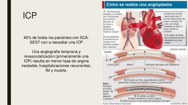ICP 40% de todos los pacientes con SCA- SEST van a necesitar una ICP Una angiografía temprana y revascularización (primera...
