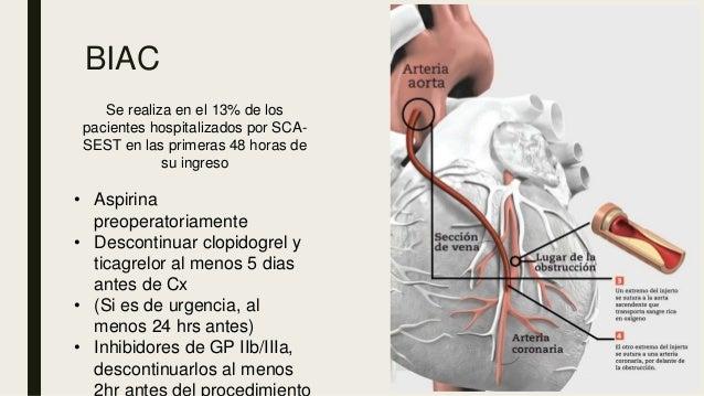 BIAC Se realiza en el 13% de los pacientes hospitalizados por SCA- SEST en las primeras 48 horas de su ingreso • Aspirina ...