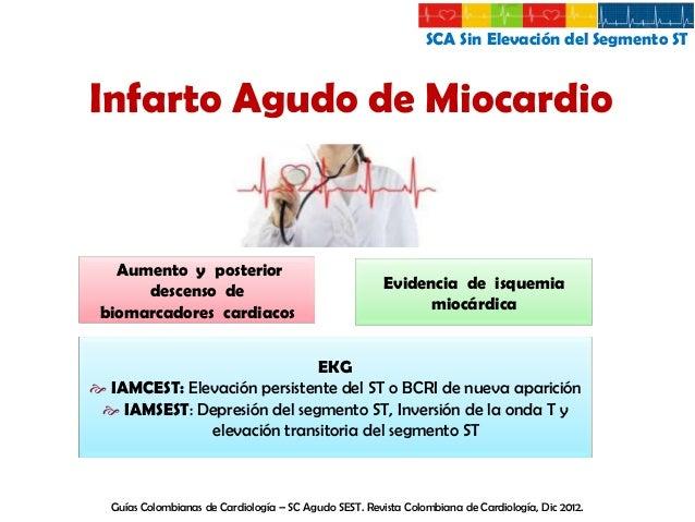 SCA Sin Elevación del Segmento ST  Angina Clásica Molestia o dolor profundo en la región retroesternal  Irradiado a brazos...