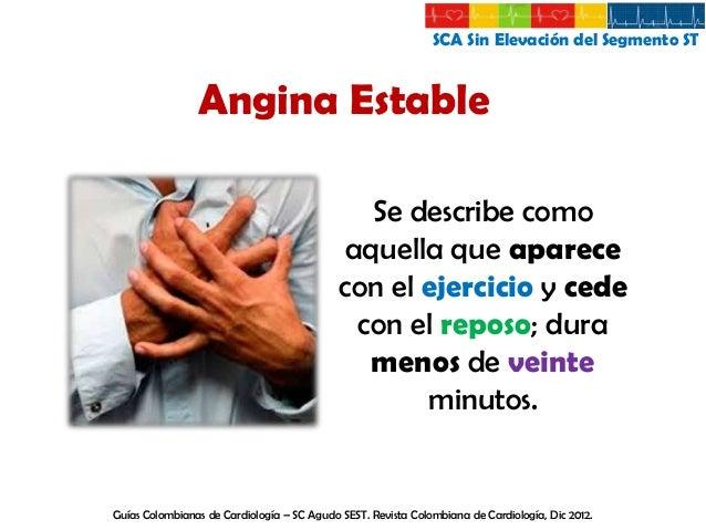 SCA Sin Elevación del Segmento ST  Angina Inestable De larga duración, usualmente mayor de Angina en reposo 20 minutos  Lo...