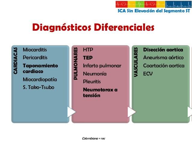 SCA Sin Elevación del Segmento ST  Clasificación Clínica  Tipo1  Tipo2  Tipo3  Tipo4  Tipo5  Guías Colombianas de Cardiolo...