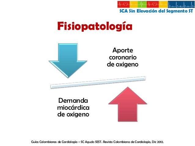 SCA Sin Elevación del Segmento ST  Fisiopatología  1. Estrechamiento de la arteria coronaria • Trombo no oclusivo • Ateroe...