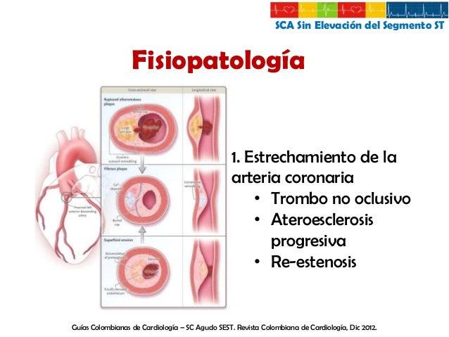 SCA Sin Elevación del Segmento ST  Fisiopatología 2. Vasoespasmo 3. Causas secundarias • Fiebre • Taquicardia • Tiroxicosi...