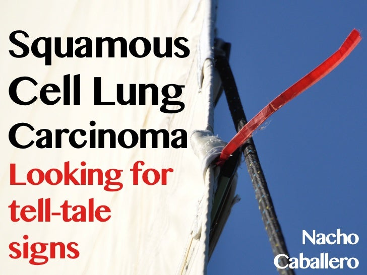 SquamousCell LungCarcinomaLooking fortell-tale                Nachosigns         Caballero