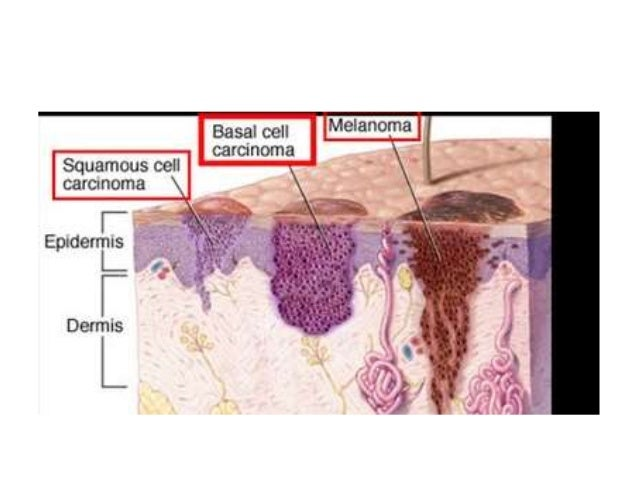 a description of the dangers of contracting skin cancer from the sun Stage 4 is the most advanced phase of melanoma, a serious form of skin cancer this means the cancer has spread from the lymph nodes to other organs, most often the lungs some doctors also refer.