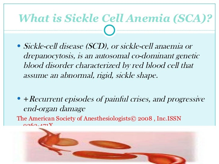qualitative research proposal on sickle cell disease Our sickle cell anemia disease experts can research and write a new, one-of-a-kind, original dissertation, thesis, or research proposal—just for you—on the precise sickle cell anemia disease topic of your choice our final document will match the exact specifications that you provide, guaranteed.