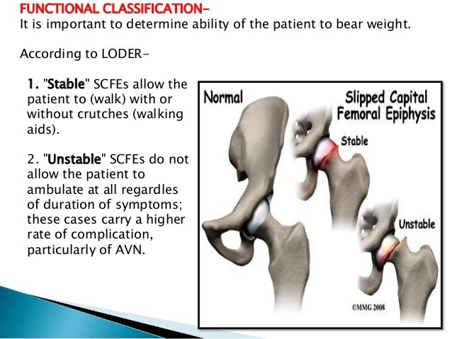 slipped capital femoral epiphysis essay Slipped capital femoral epiphysis (scfe) is one of the most important pediatric and adolescent hip disorders encountered in medical practice although scfe is a rare condition, an accurate diagnosis combined with immediate treatment is critical.