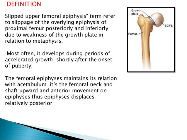femur definition – citybeauty, Human body