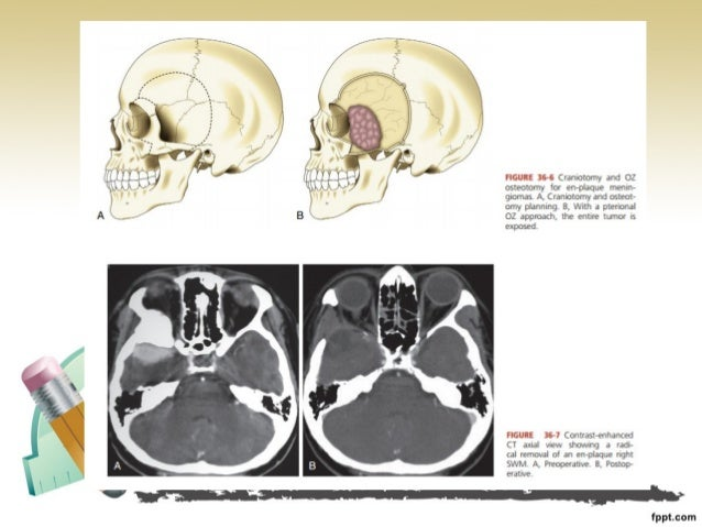 sch.36 surgical management of sphenoid wing meningioma, Human Body