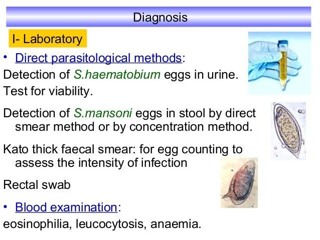 Schistosoma Parasitology Kasr El Einy Department
