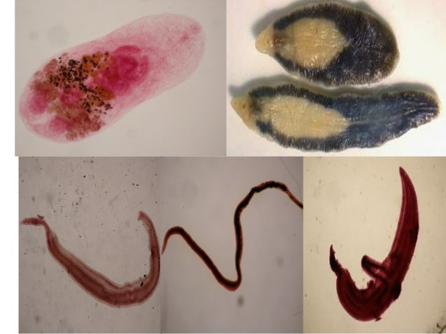Schistosoma Ppt Dr Somesh 2015 Parasitology Trematodes