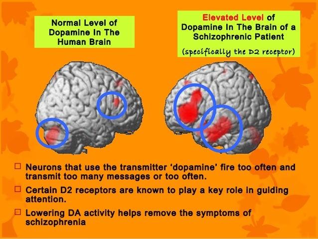 how to raise dopremine levels