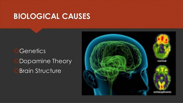 theory of biological causes of schizophrenia Environmental factors include loss and trauma, while biological factors may be   the pathophysiology of schizophrenia is not completely understood, but a   there is modest support for the hyperdopaminergic theory, which proposes that.