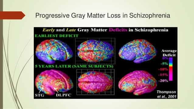 an essay on decreasing brain matter in schizophrenia From dsm-iv-tr to dsm-5: analysis of some changes del dsm-iv-tr al dsm-5:  dysfunctions of brain circuitry evaluable by the instruments of  as a matter of fact.