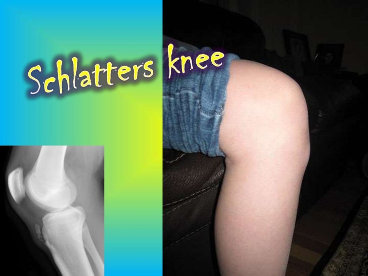 What is Schlatters knee?– Schlatters knee is usually referred to as Osgood-       Schlatter disease– Osgood-Schlatter dise...