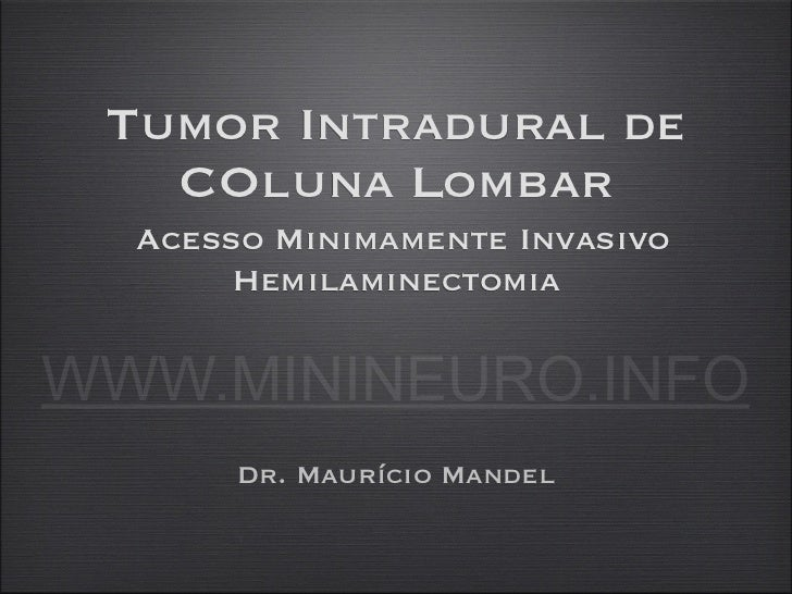 Tumor Intradural de   COluna Lombar  Acesso Minimamente Invasivo       HemilaminectomiaWWW.MININEURO.INFO       Dr. Mauríc...
