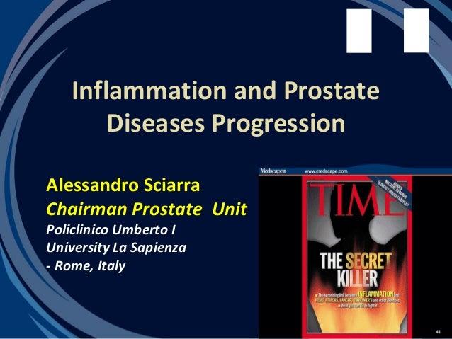 Inflammation and Prostate       Diseases ProgressionAlessandro SciarraChairman Prostate UnitPoliclinico Umberto IUniversit...
