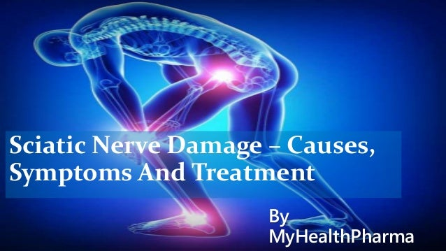 Sciatic Nerve Damage – Causes And Treatment