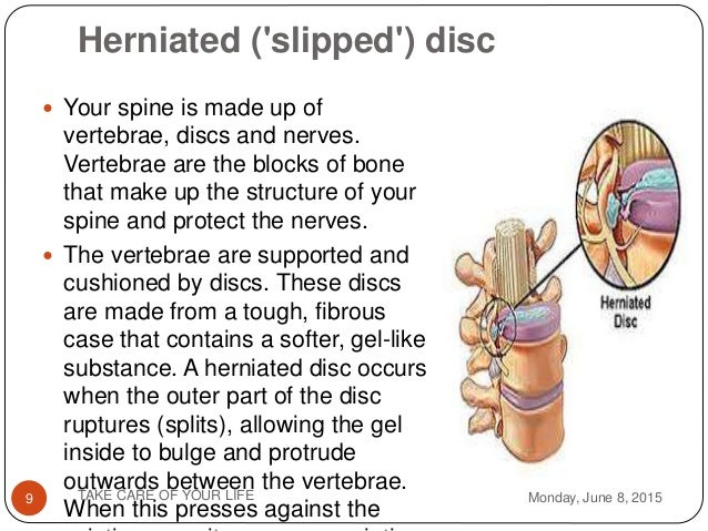 how a slipped disc happens What can happen if i don't treat a bulging disk  the fluid in the disc leaks out and this compromises the vertebra that the disc was responsible for.