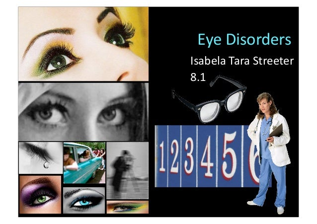EyeDisordersIsabelaTaraStreeter8.1