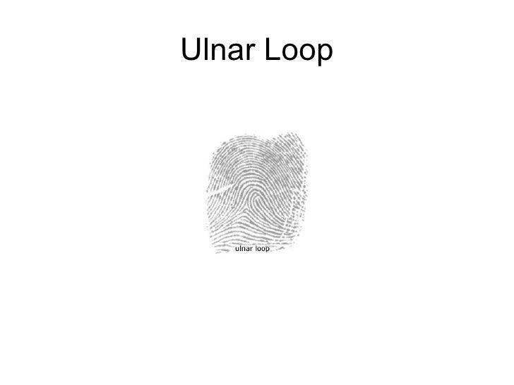 Science Crime Busters Fingerprints Ppt