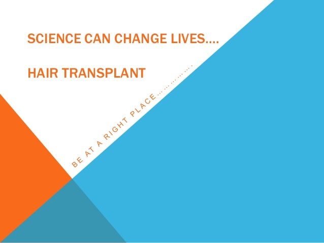 SCIENCE CAN CHANGE LIVES…. HAIR TRANSPLANT