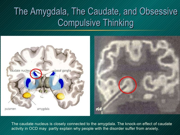 The Amygdala, The Caudate, and Obsessive Compulsive Thinking The caudate nucleus is closely connected to the amygdala. The...