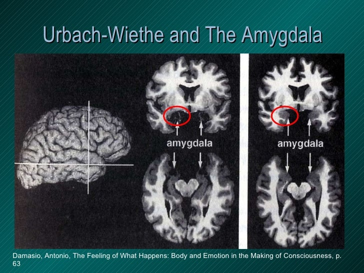 Urbach-Wiethe and The Amygdala Damasio, Antonio, The Feeling of What Happens: Body and Emotion in the Making of Consciousn...