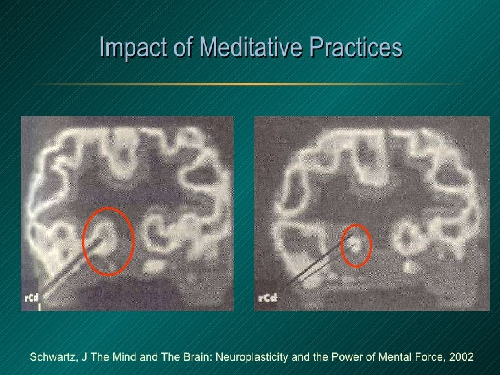 Impact of Meditative Practices Schwartz, J The Mind and The Brain: Neuroplasticity and the Power of Mental Force, 2002