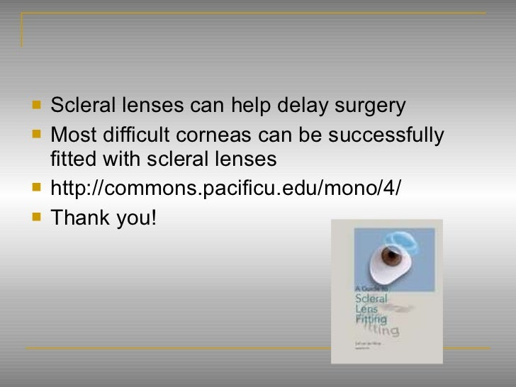 lense final research 1 Innovation in contact lenses: basic research and clinical science  and the last  decade has seen a number of significant developments occurring in the field   xin wei and larry thibos propose the application of a technique.