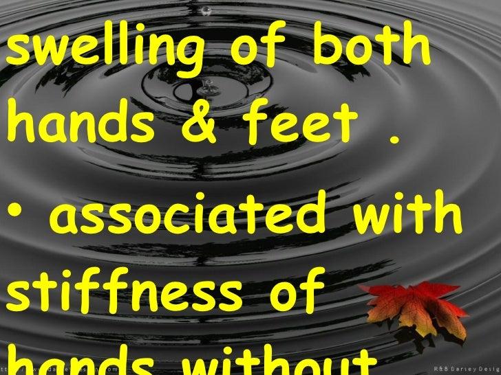 <ul><li>swelling of both hands & feet . </li></ul><ul><li>associated with stiffness of hands without pain .  </li></ul>