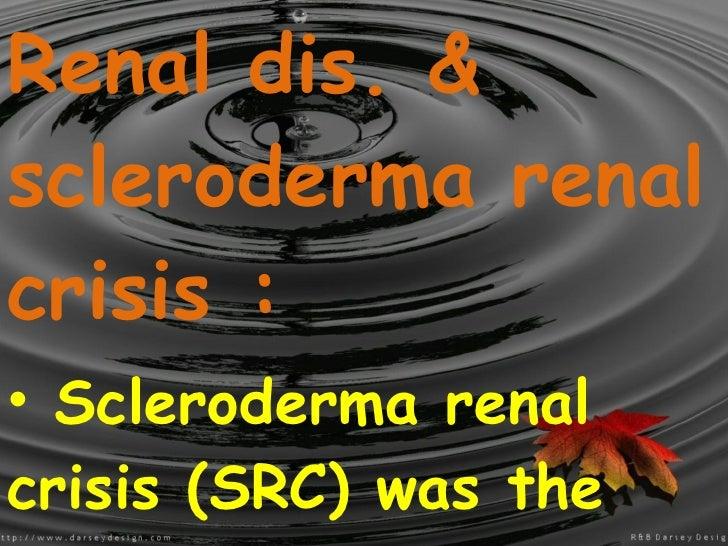 <ul><li>Renal dis. & scleroderma renal crisis : </li></ul><ul><li>Scleroderma renal crisis (SRC) was the most common cause...